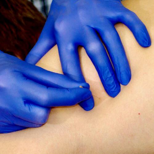 al onze fysiotherapeuten zijn goed geschoold in dry needling.